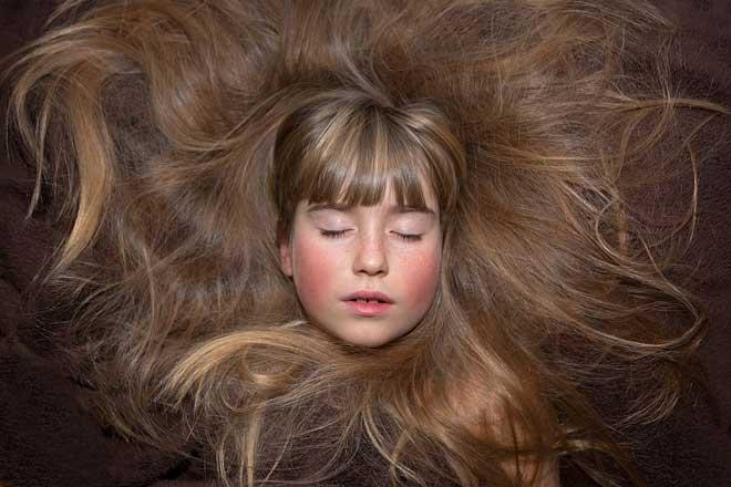 qual a vitamina que fortalece o cabelo
